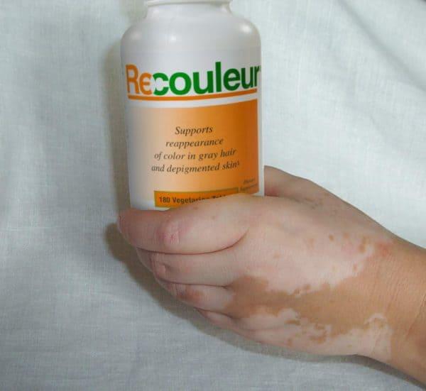 Recouleur helps vitiligo